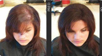 Zahušťovač vlasů